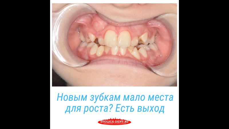 Лечение зубов ребенка аппаратом Haas в клинике Столица