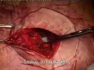 Хирургические операции. Лечение паховой и пупочной грыжи