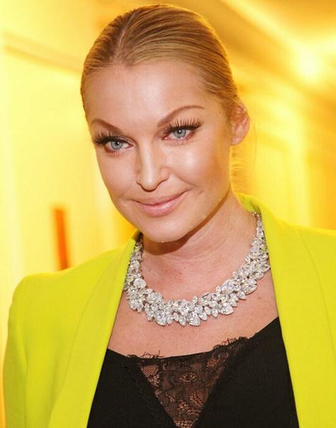 Анастасия Волочкова расказала о свадьбе своего бывшего: «Это свадьба альфонса на отнятые у меня $3